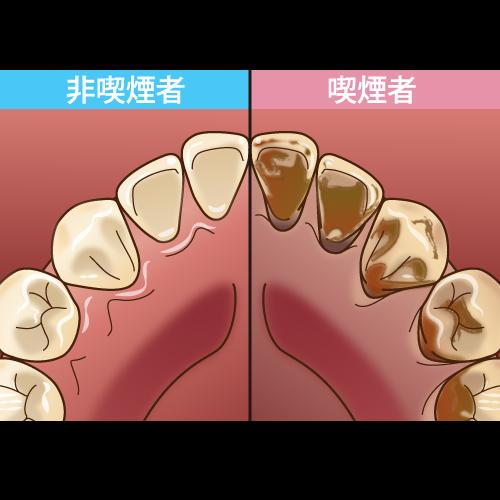 歯のヤニ汚れの比較イラスト